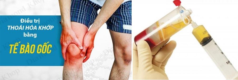Giới thiệu về phương pháp điều trị thoái hóa khớp gối bằng tế bào gốc-1.jpg