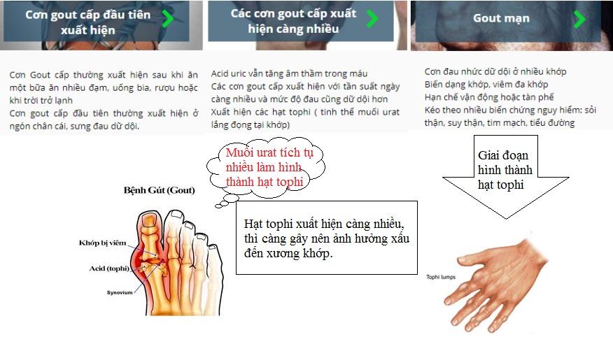 Hạt tophi do bệnh gout gây nên-1.jpg