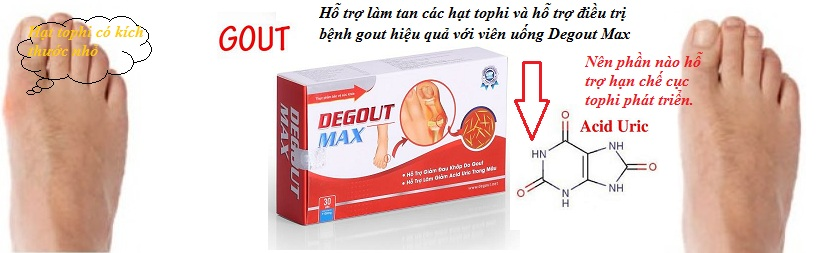 Hạt tophi do bệnh gout gây nên-2.jpg