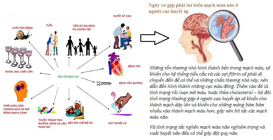 Nguy cơ gặp phải tai biến mạch máu não ở người cao huyết áp1.jpg