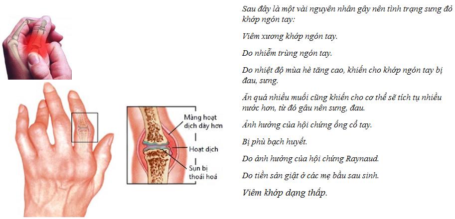 Những nguyên nhân gây tình trạng sưng đỏ khớp ngón tay1.png