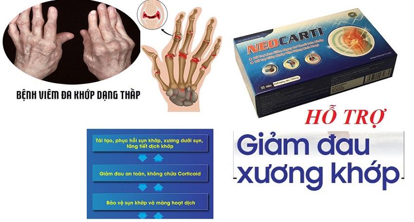 Những nguyên nhân gây tình trạng sưng đỏ khớp ngón tay2.jpg