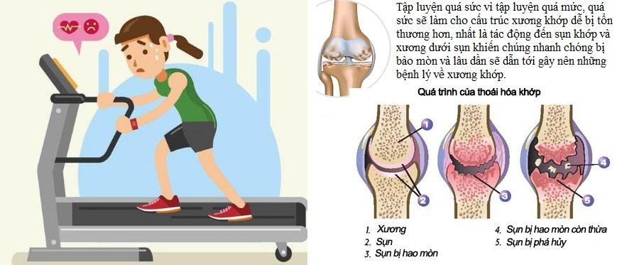 Tập thể dục quá mức có thể gây nên bệnh xương khớp-1.jpg